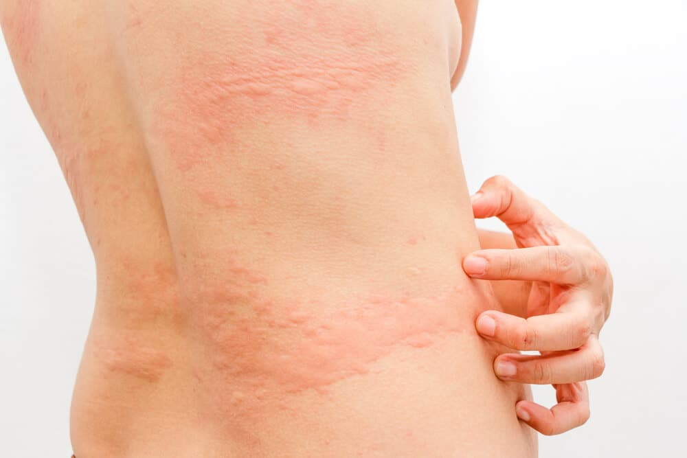 Arthropod Bites, Stings, And Cutaneous Infections